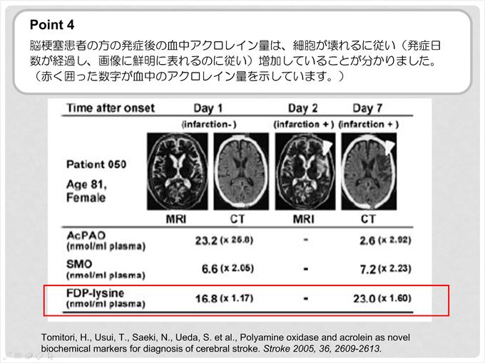 ポイント4 脳梗塞患者の方の発症後の血中アクロレイン量は、細胞が壊れるに従い(発症日数が経過し、画像に鮮明に表れるのに従い)増加していることが分かりました。(赤く囲った数字がアクロレイン量を示しています)