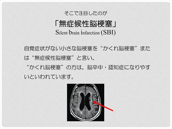 そこで注目したのが「無症候性脳梗塞」Silent Brain Infarction(SBI)自覚症状がない小さな脳梗塞をかくれ脳梗塞または無症候性脳梗塞と言い、かくれ脳梗塞の方は、脳卒中・認知症になりやすいといわれています。