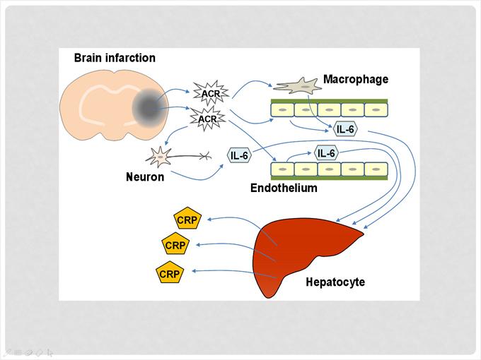 Brain Infarction Macrophage IL-6 Neuron Endothelium Hepatocyte CRP